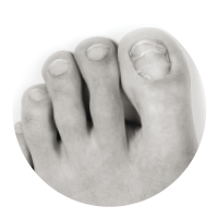Athlete's foot and fungal nail conditions