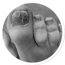 Do you have a toenail condition?