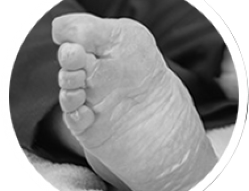 What is a Bunion?